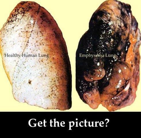 smoker lungs